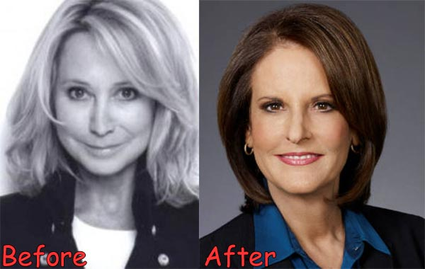 Gloria Borger Before After